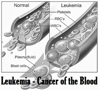 Leukemia - Cancer of the Blood
