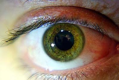 5 Risiko Penyakit Berdasarkan Warna Mata
