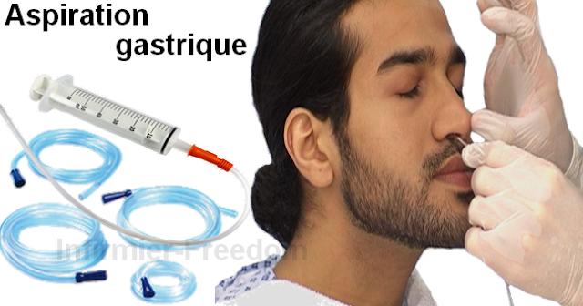 Aspiration naso-gastrique