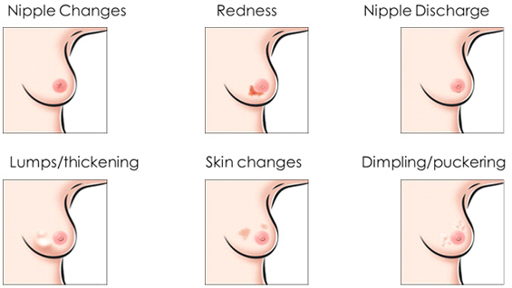 Image result for symptoms of breast cancer with pictures
