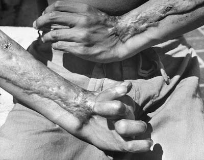 Peringatan Jatuhnya Bom Hiroshima dan Nagasaki