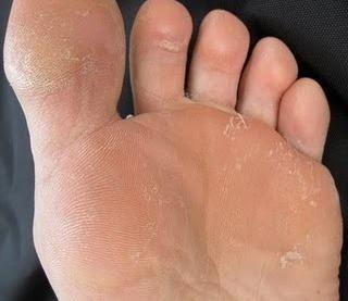 Aconsejen el medio bueno del hongo de los pies