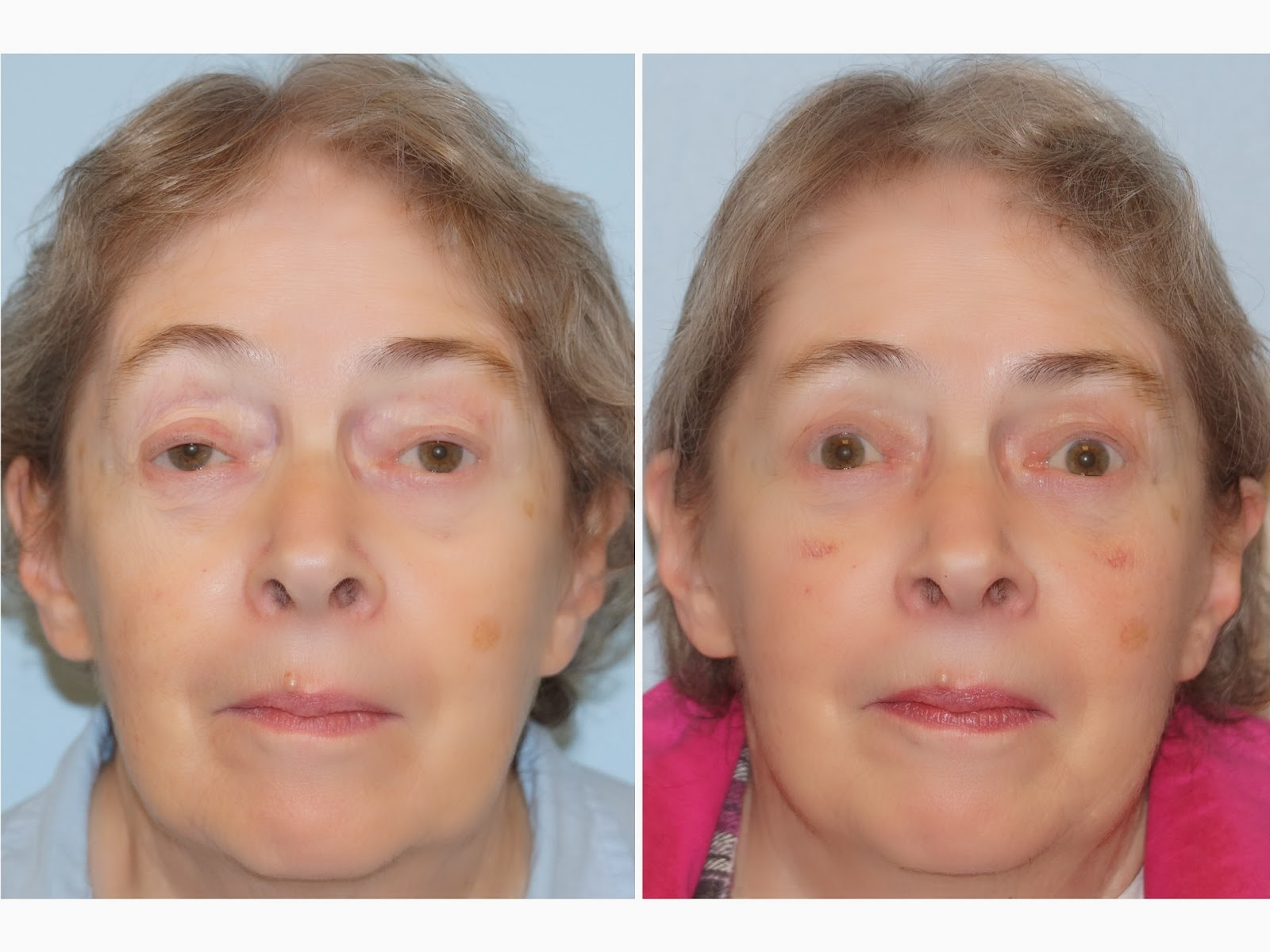 facial plastic surgery  lazy eye  ptosis repair  upper
