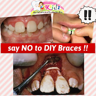 Say No to DIY Braces