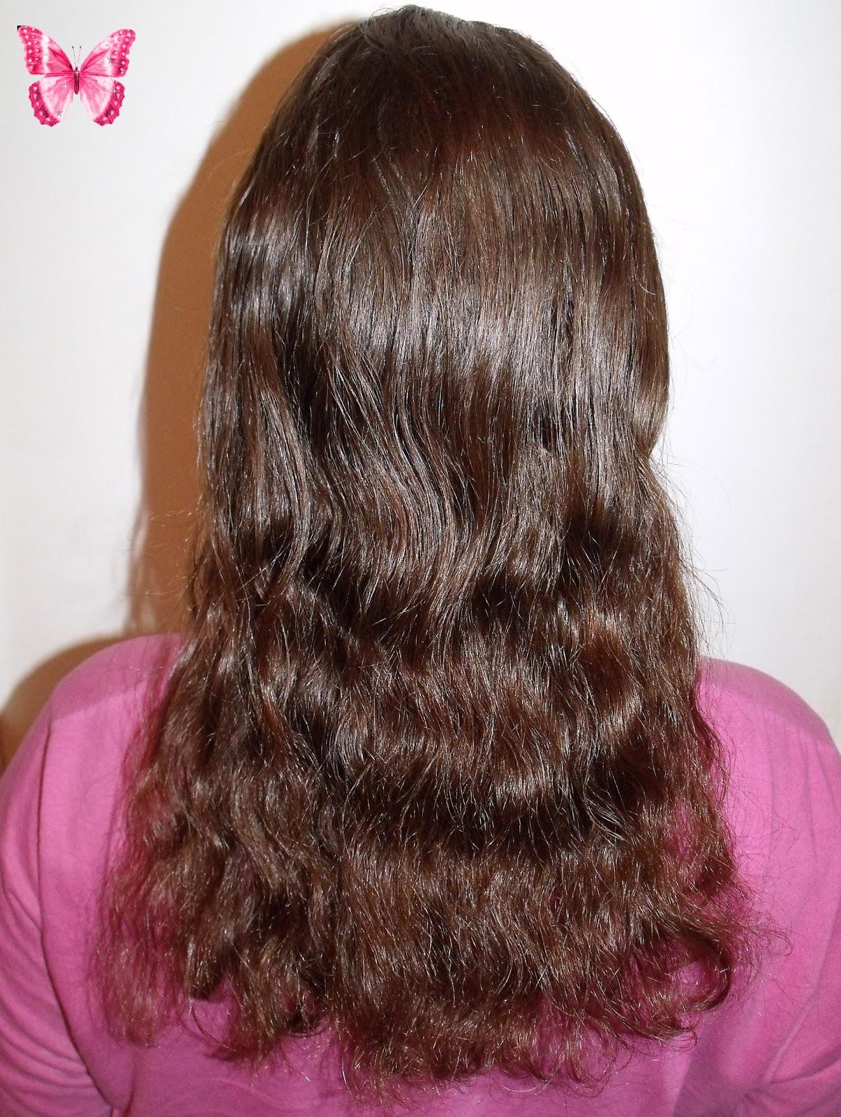 La chute des cheveux après kt