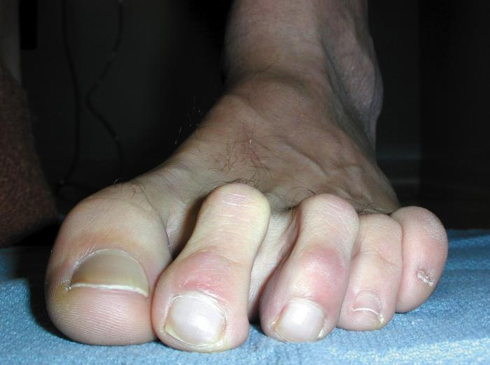 Deformutilation: Hammer toes