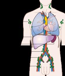 ciri ciri kanker getah bening , Tempat penyebaran kanker getah bening