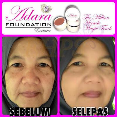 adara foundation