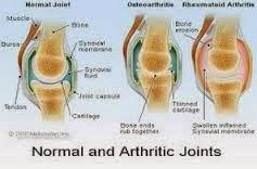 sakit lutut, sendi. lutut, sakit sendi, osteoarthritis, ajht, glucosamine, kalsium