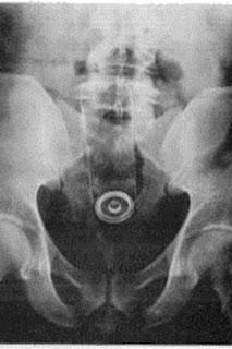gambar ilustrasi ponsel nyasar ke anus