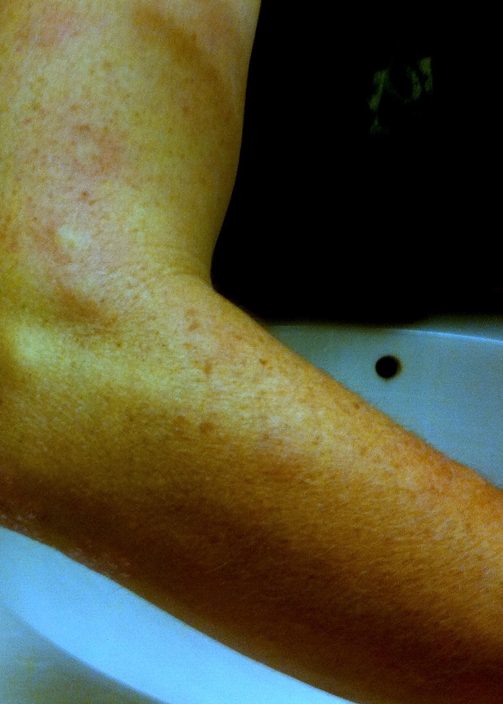 Fiberglass In My Skin : Road rage scratch and sniff