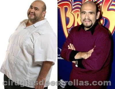 edgar vivar antes y despues