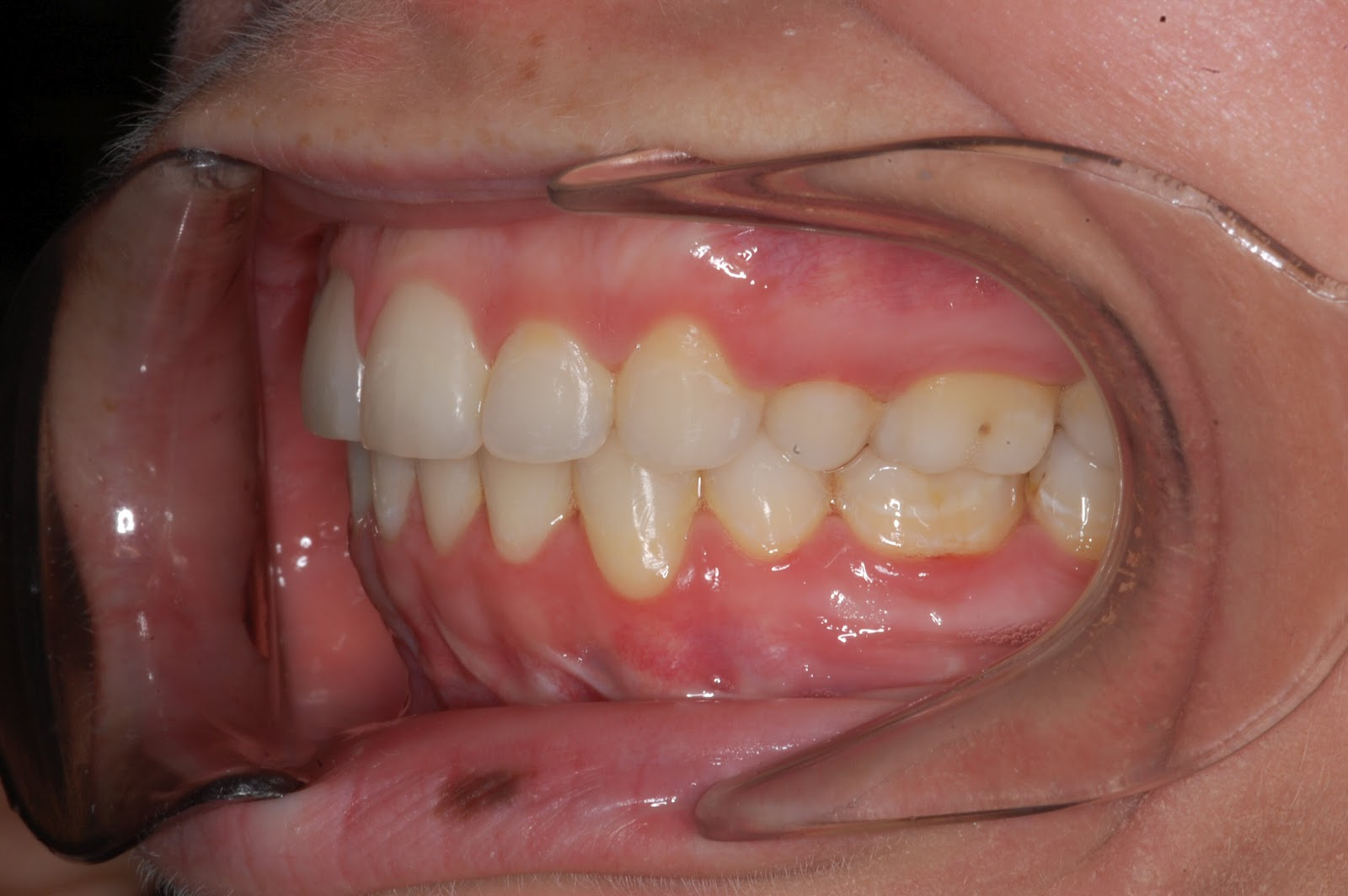 Truman Orthodontics: Orthognathic Surgery