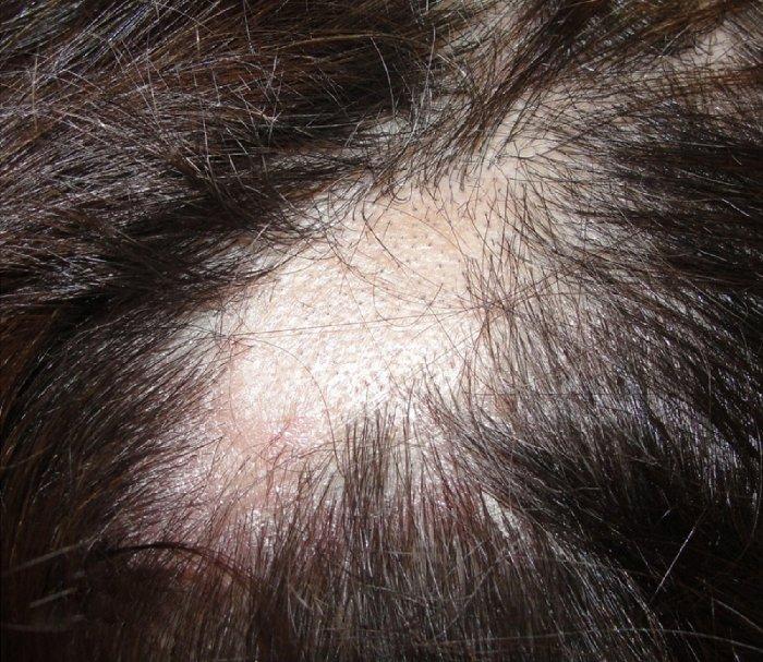 Las manchas de pigmento secas en la piel
