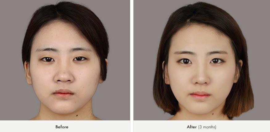 Foto sebelum dan sesudah operasi plastik hidung Korea-2