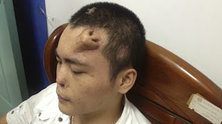 Chinese Man Has New Nose Grown on His Forehead