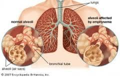 Tips ampuh mengobati radang paru paru basah pneumonia