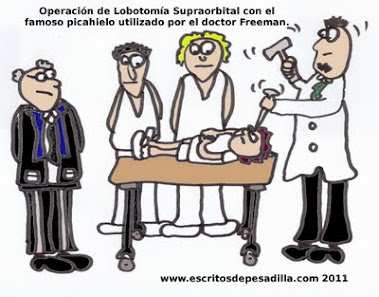 """La técnica del """"picahielos"""" del Doctor Freeman. (Lobotomía transorbital)."""