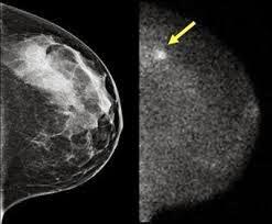 breast cancer diagnosis using mammogram examination
