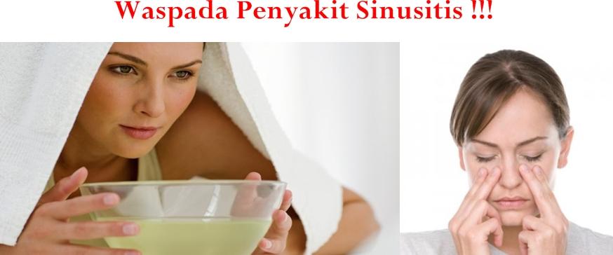 Obat Tradisional Sinusitis