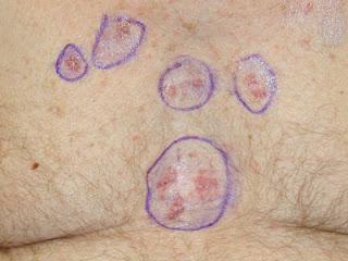 skin cancer white spots