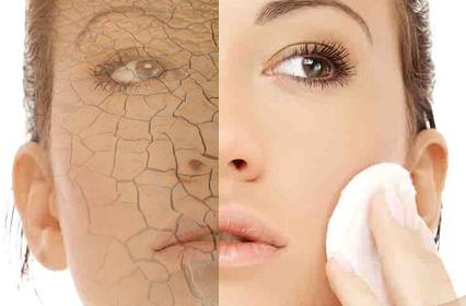 Cuidado de la piel para la piel propensa al acné