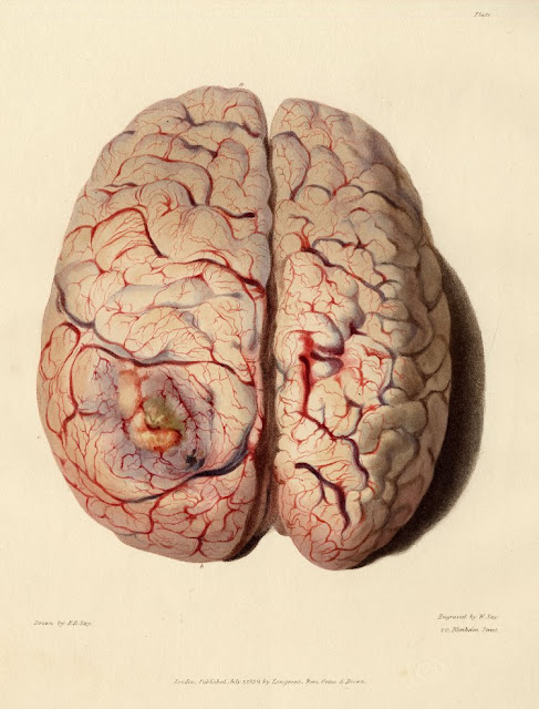 Brain Anatomical2