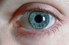 التغيير في لون العين علامة لوجود خلل بالجسم