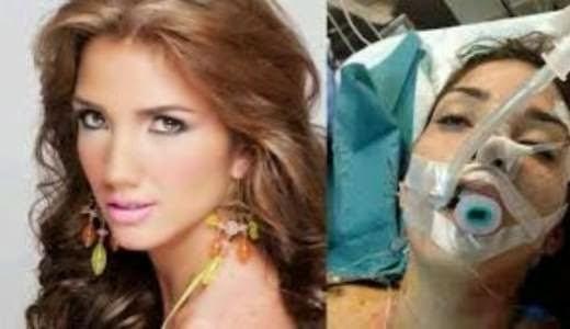 Foto Tragis Ratu Kecantikan Venezuela Saat Demo