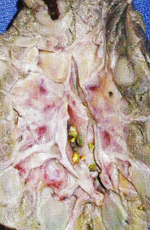 Batu buah pinggang Berkaitan Dengan Penyakit Kardiovaskuler