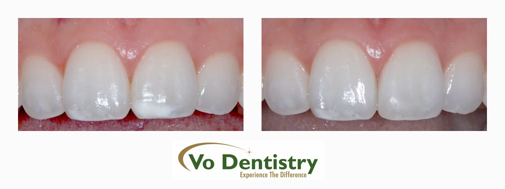 White spots, decalcification, dental flourosis, dentists, cosmetic dentists,  implant dentists, family dentist, general dentist, restorative dentist, children dentist,  cosmetic dentistry, implant dentistry, laser dentistry, dentist Lawrenceville, Lawrenceville dentist, Gwinnett dentist, dentist Georgia, dentist Atlanta, Dr. Vo, Dr. Lia Vo, Vo Dentistry, female dentist, woman dentist, porcelain crowns, porcelain veneers, bridges, dental implants, extractions, wisdom teeth removal, deep cleaning, gum surgery, teeth whitening, oral surgery, root canals, full-mouth reconstruction, white tooth colored fillings, composite fillings, dentures, partials, smile makeovers, flexible financing, no interest financing, care credit, night guards, mouth guards, Lawrenceville, Norcross, Buford, Hamilton Mill, Dacula, Auburn, Sugar Hill, Sugar Loaf, Doraville, Chamblee, Stone Mountain, Decatur, Collins Hill, Snellville, Suwanee, Grayson, Lilburn, Duluth, Cumming, Alpharetta, Marietta, Dekalb County, Gwinnett County, Atlanta, North Georgia, GA, Georgia, 30043, 30044, 30045, 30093