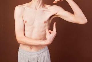 Penyebab badan kurus dan susah gemuk