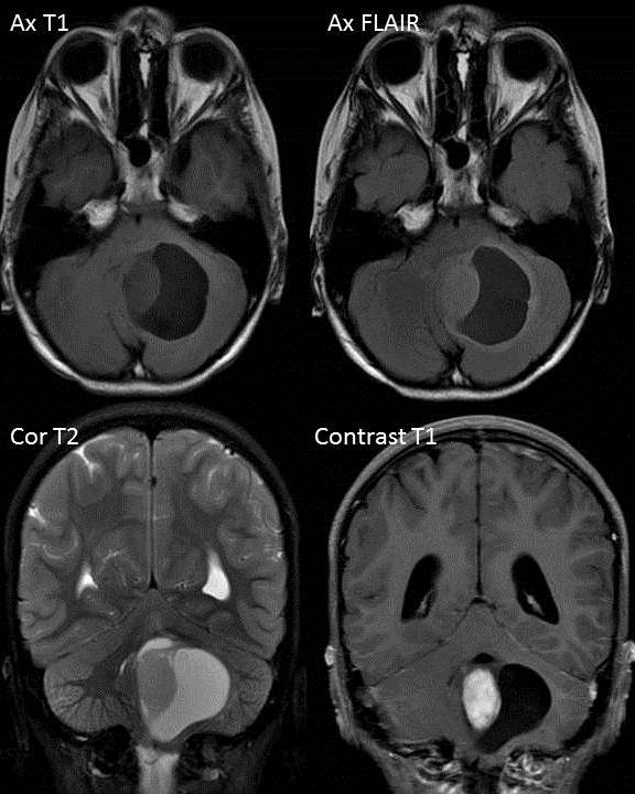 Radshare pilocytic astrocytoma for Cystic lesion with mural nodule