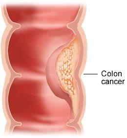 nguyên nhân và biểu hiện của bệnh ung thư đại trực tràng