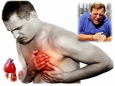 Como sobrevivir a un ataque al corazón cuando estas solo