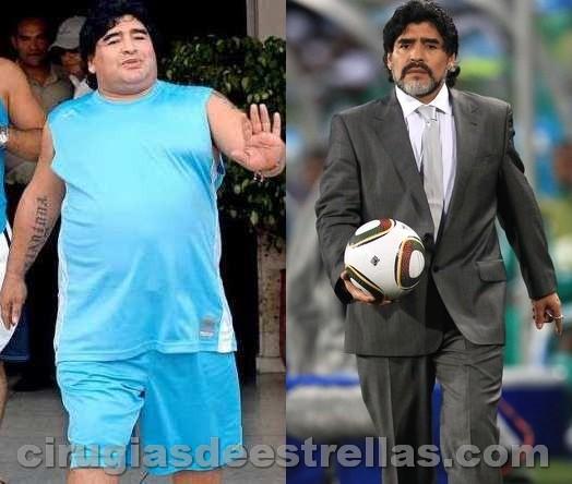 Maradona antes y después