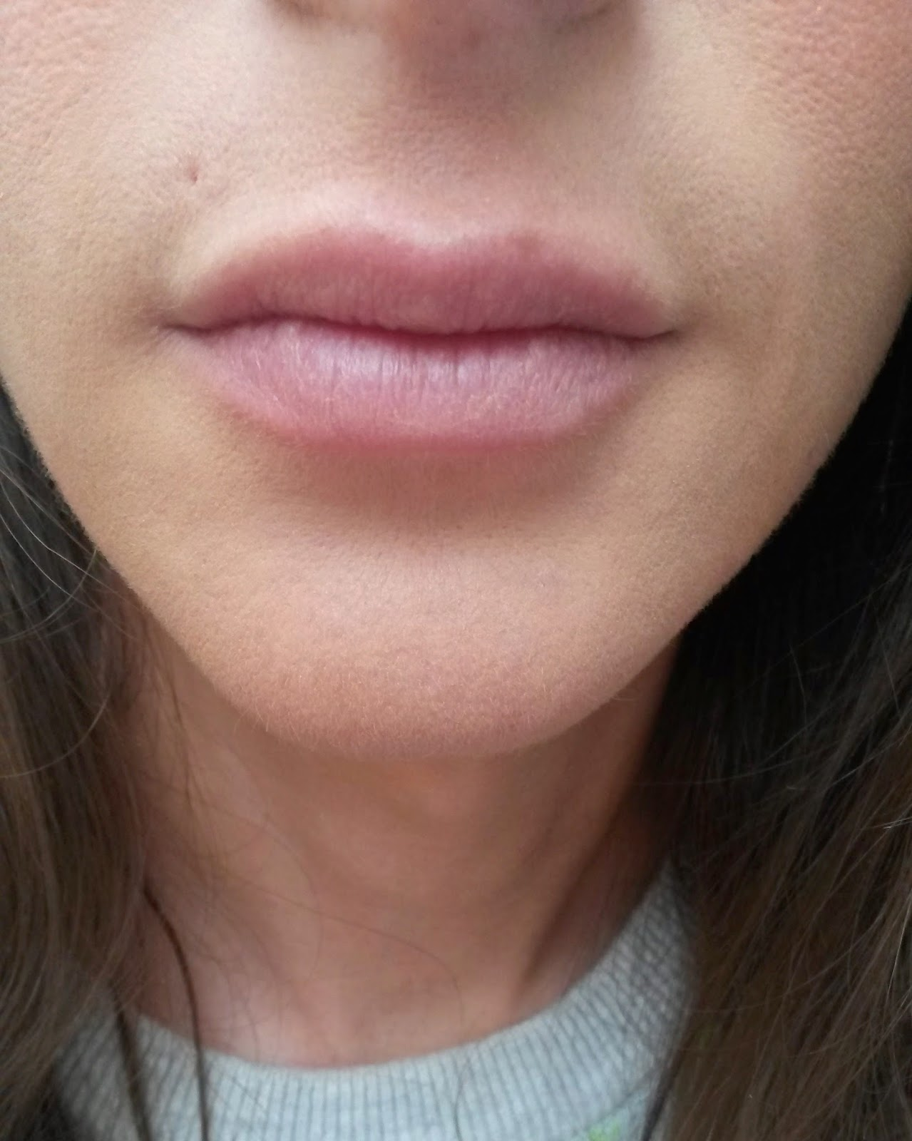 AFTER SMALL OVAL FULLIPS