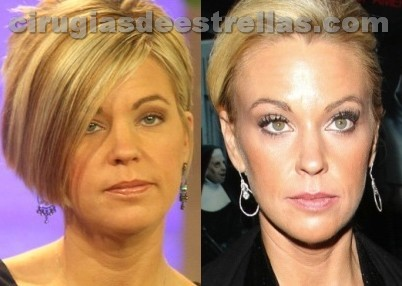 Kate Gosselin cirugia