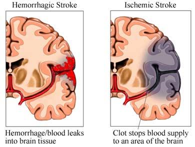perbedaan stroke iskemik dan hemoragik