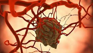 Sel Kanker Berkembang Saat Anda Konsumsi Gula