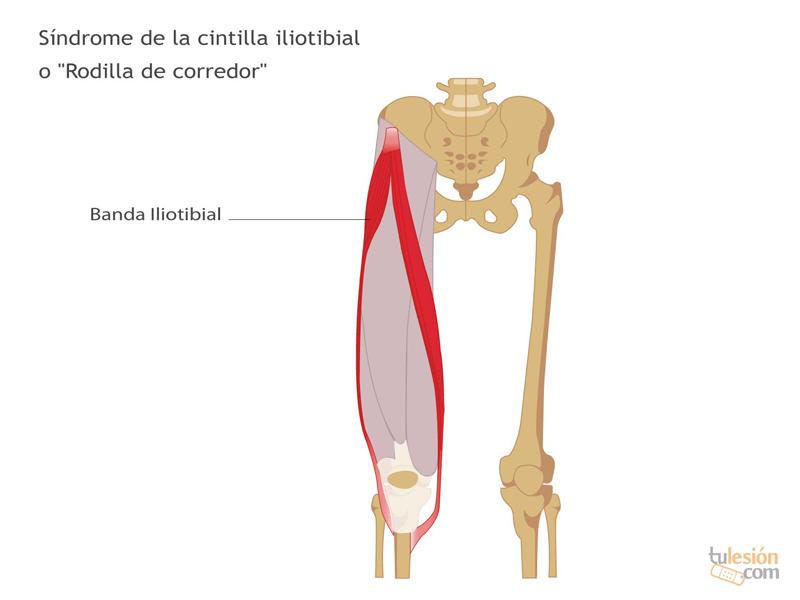 Atractivo Lesión Músculo Sartorio Fotos - Anatomía de Las ...