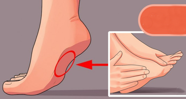 gouty arthritis risk factors gout swelling treatment does folic acid lower uric acid
