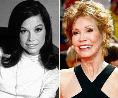 Mary Tyler Moore Plastic Surgery Before and After Facelift and Facial