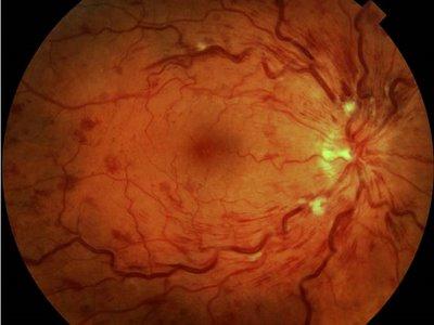 Lesão da Retina por Hipertensão (http://1.bp.blogspot.com/)