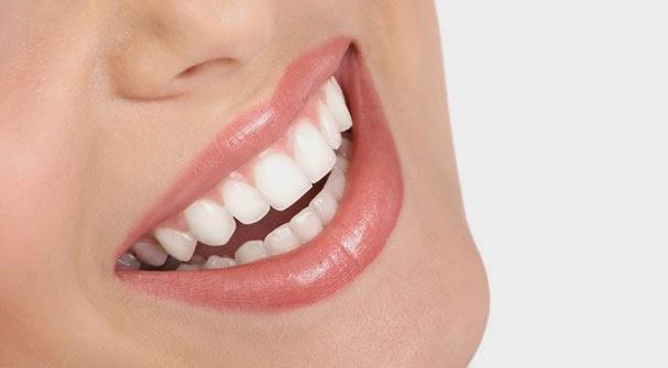 Gigi Putih Dengan Alami Dan Cepat