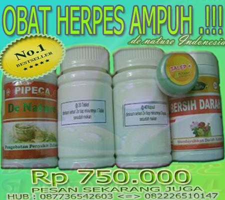 Obat Herpes Atau Dompo