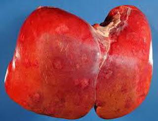 Pengobatan Penyakit Liver Bengkak Secara Tradisional