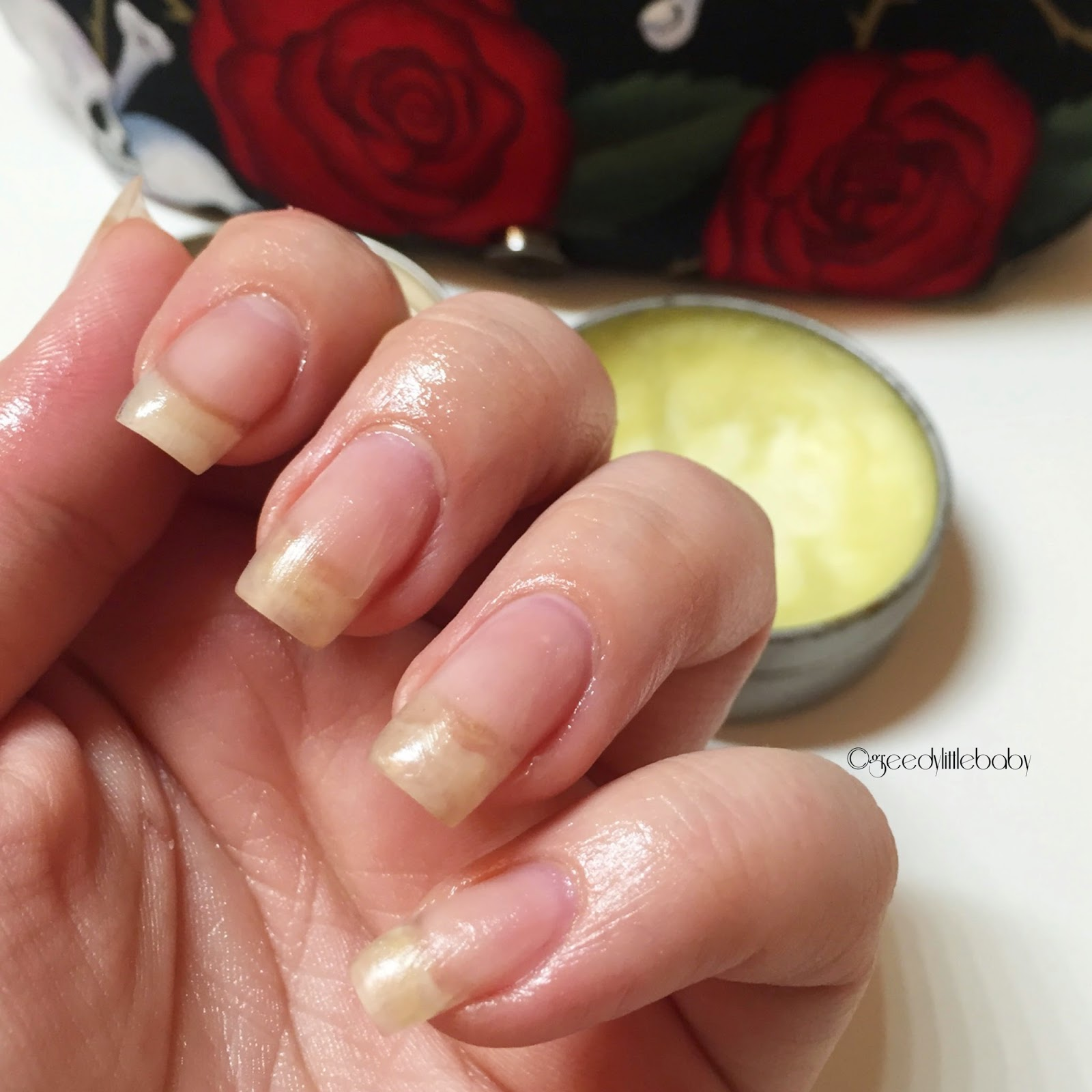 Greedy Nails: Pflegerroutine Nagelhaut