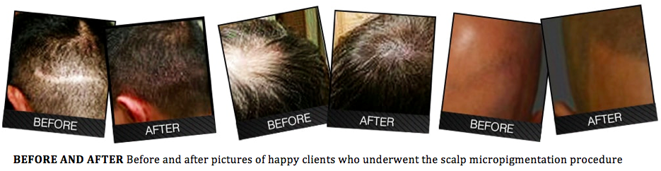 Thinning Hair Problems? Going Bald? Scalp Micropigmentation May Be ...