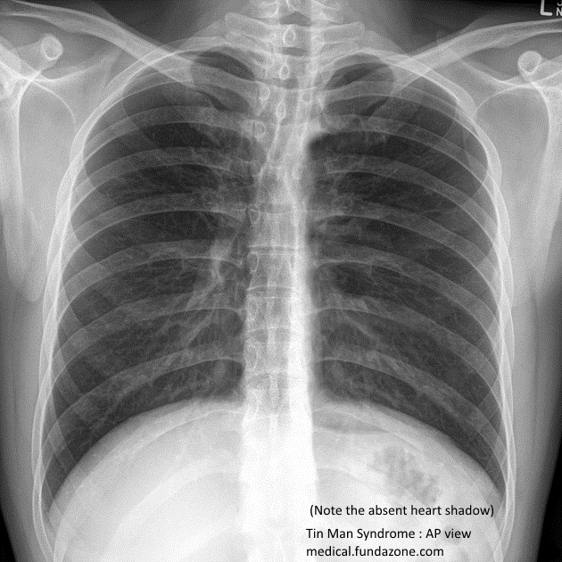 how to tell hyperinflation on chest x ray midclavicular line